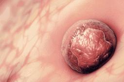 embrião implantando graças ao teste ERA